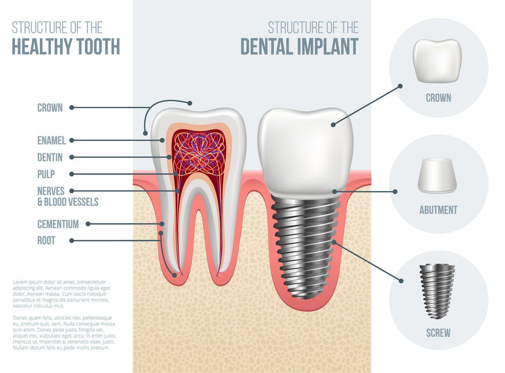 Dental Implants Point Cook The Dental Gallery