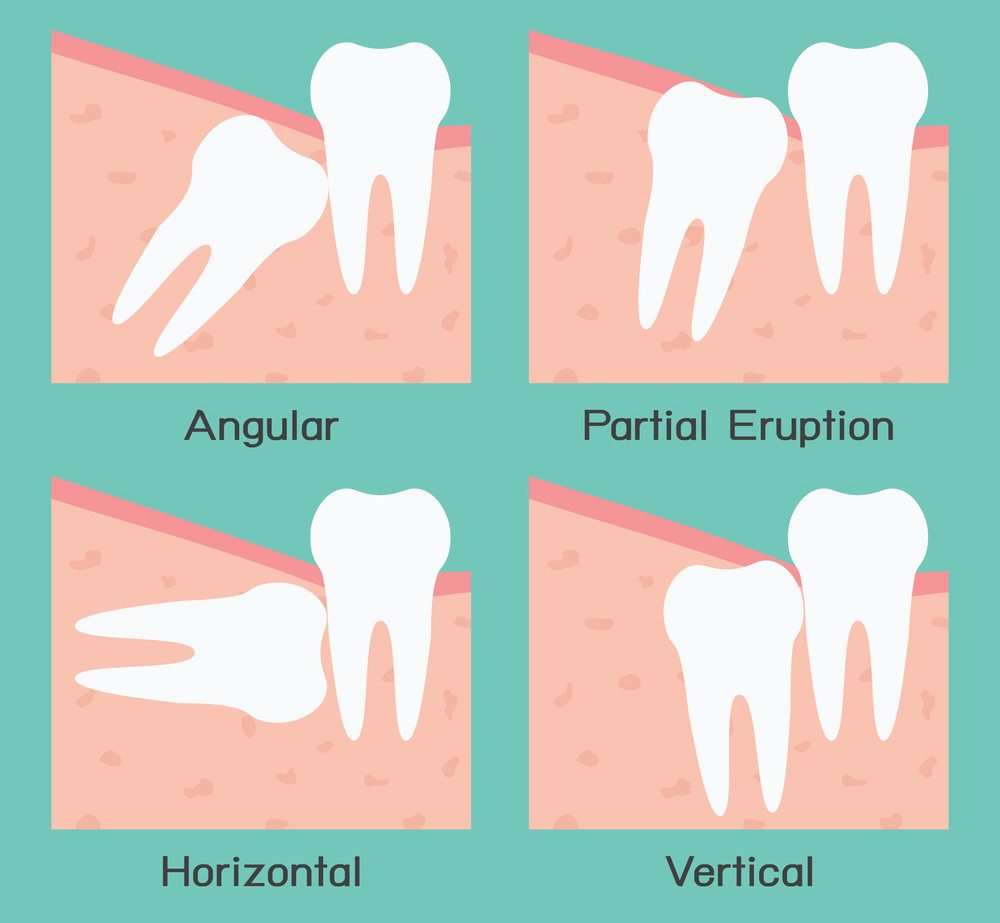 Impacted or Painful Wisdom Teeth