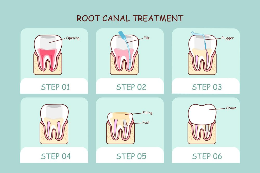Root Canal Therapy